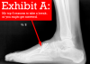 X-ray of a foot injury